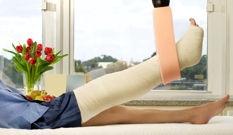 Leg in a cast and elevated in hospital bed