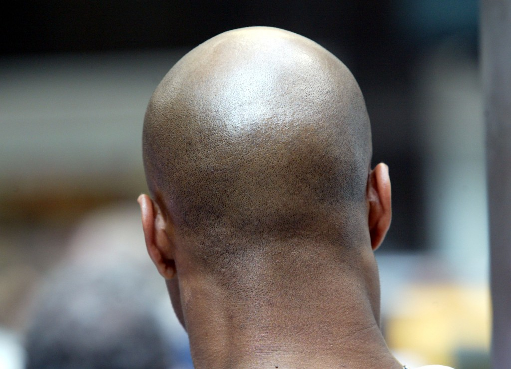 a man with hair loss