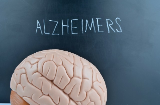 brain and label to indicate Alzheimer's disease