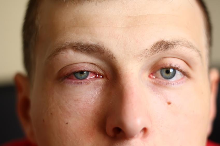 man with pink eye