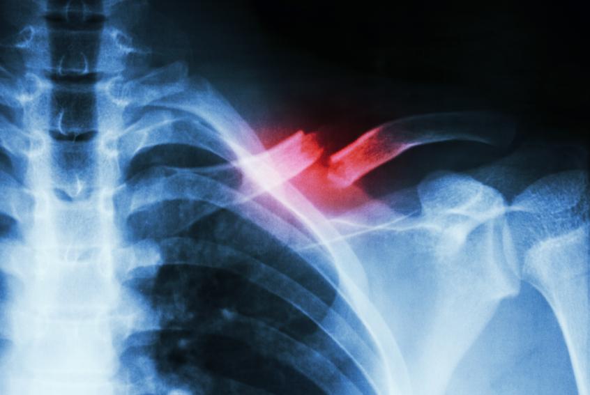x-ray of a broken collarbone