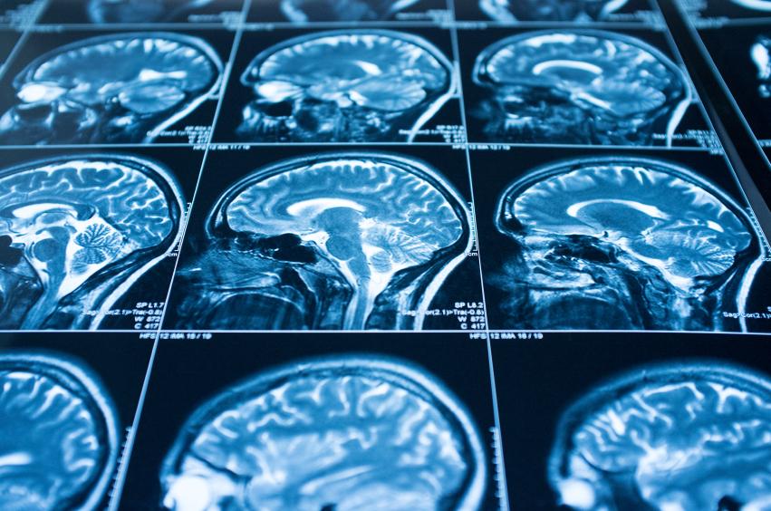 brain x-ray, MRI