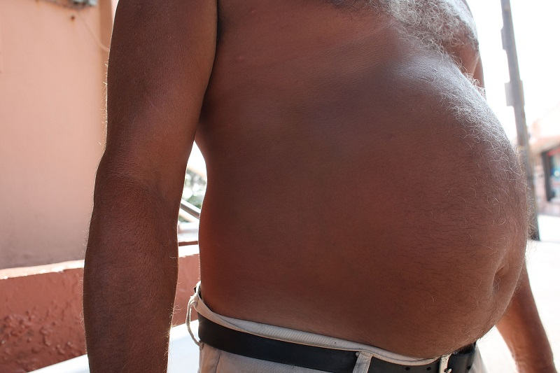 An obese man's belly