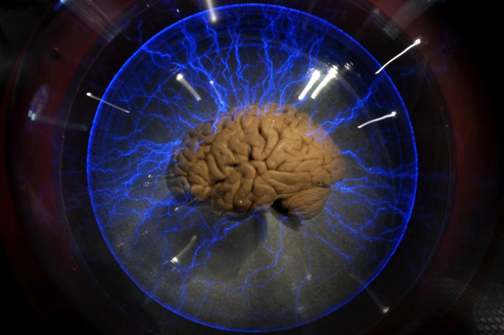 An actual human brain