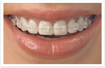 ceramic braces, oral b