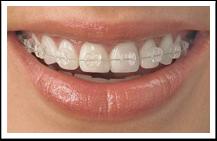 ceramic braces, oral b