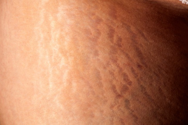 stretch marks appearing on the skin