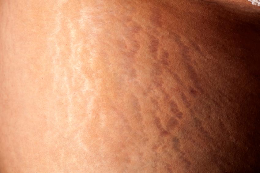 Stretch marks across skin