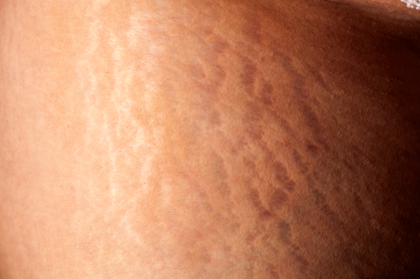 Stretch marks across skin