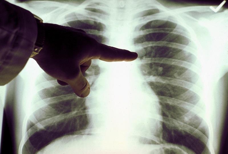 A view of a close-up of a lung x-ray of a cigarette smoker