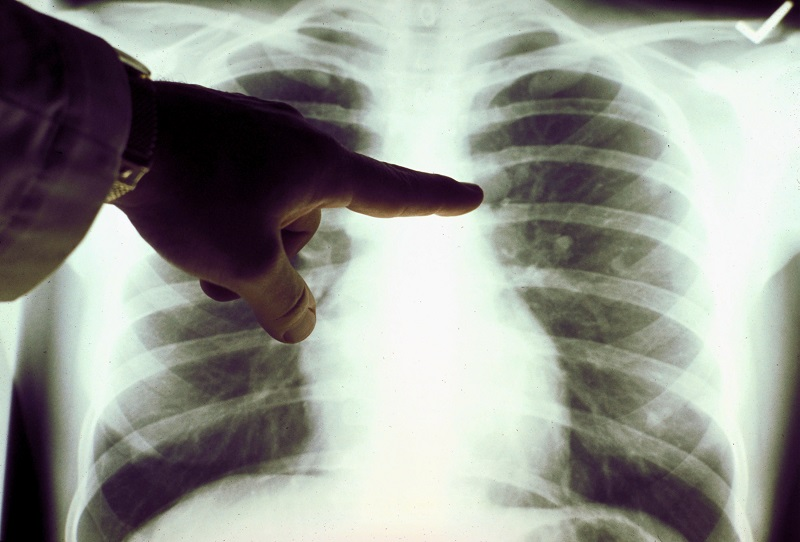 Smoker lung