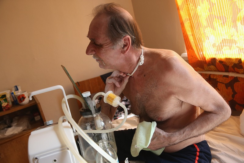 A cancer patient recovering after having surgery on his larynx