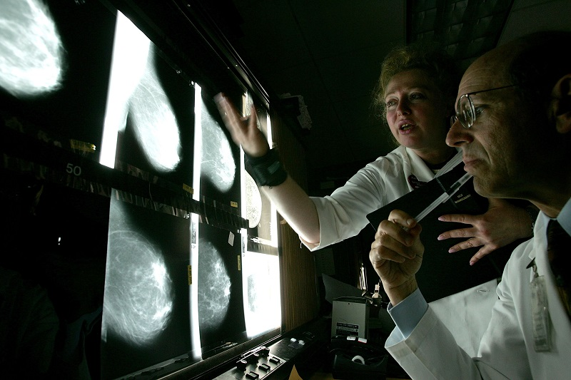 Doctors look at films of breast x-rays at the UCSF Comprehensive Cancer Center
