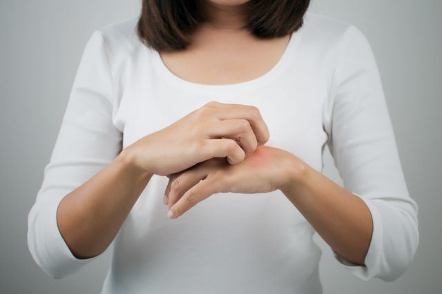 woman itching the her hand