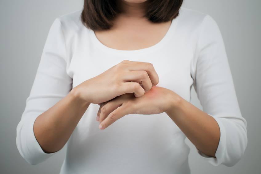 woman itching her hand
