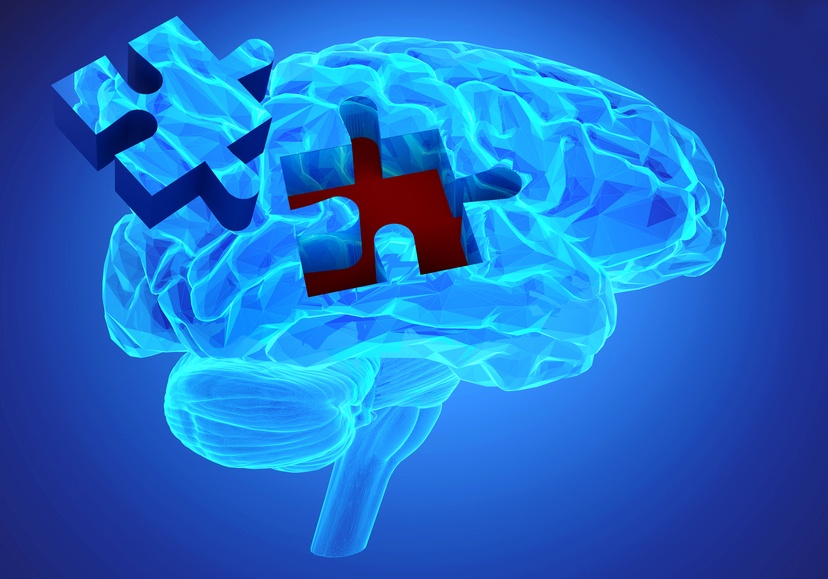 Concept of dementia disease and a loss of brain function
