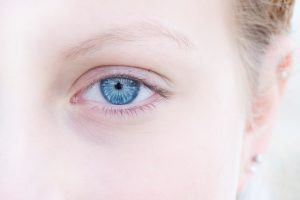 5 Reasons Why You Have Dark Under-Eye Circles