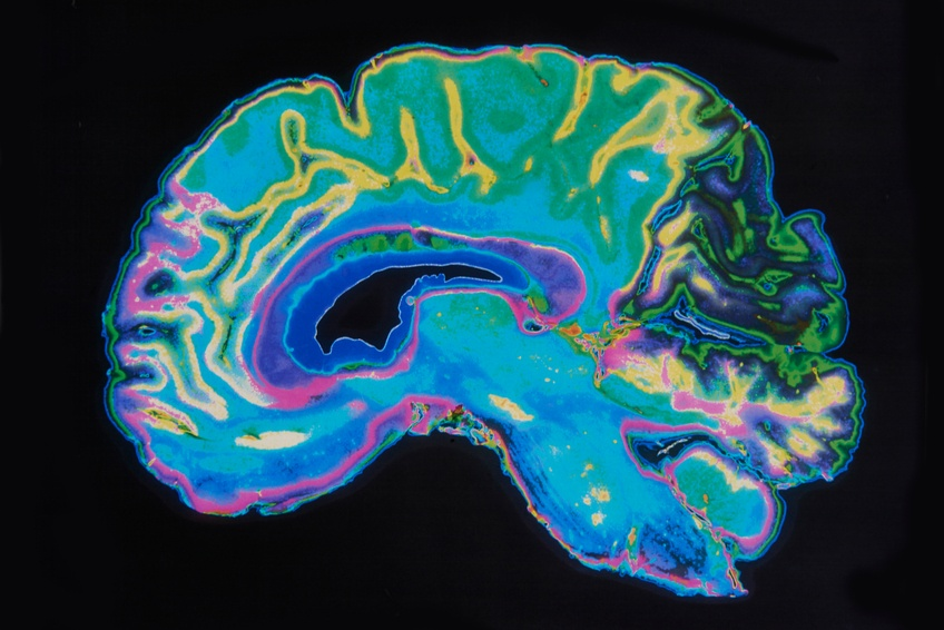 MRI Image of a brain, where a stroke takes place