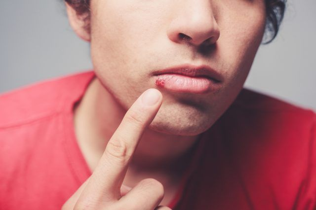 Young man is showing a cold sore