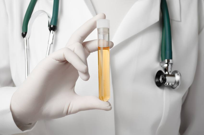 Doctor holding a bottle of urine sample