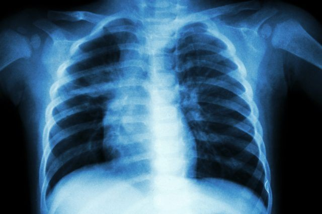 Chest X-ray close up.