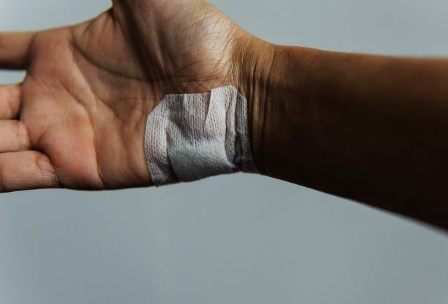 hand wound caused by an accident