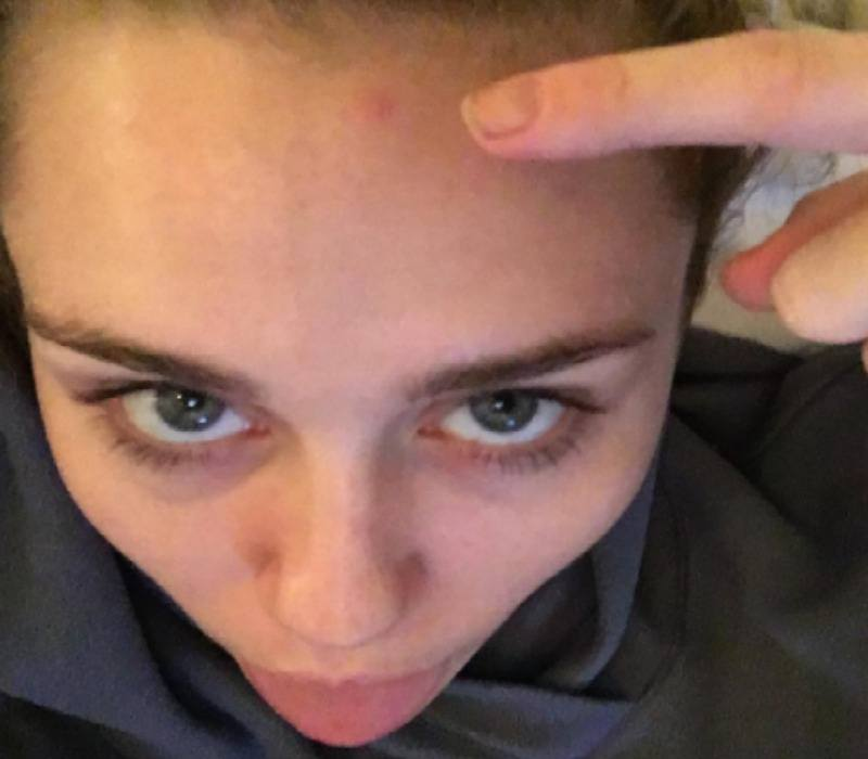 Miley Cyrus is sticking her tongue out as she points at a pimple on her forehead.