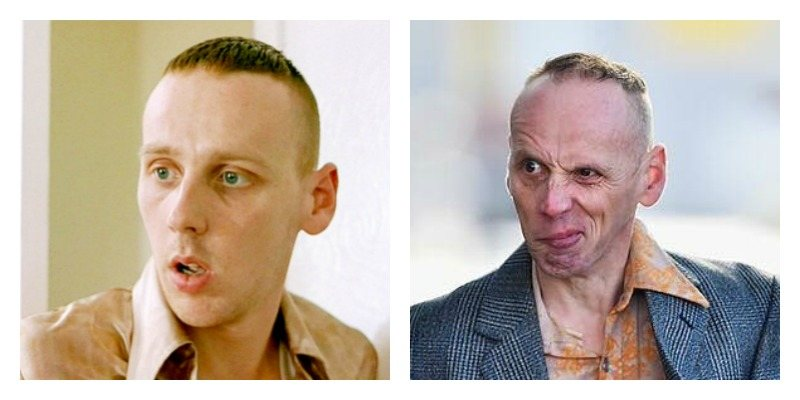 Ewen Bremner as Spud in Trainspotting and Trainspotting 2 side by side