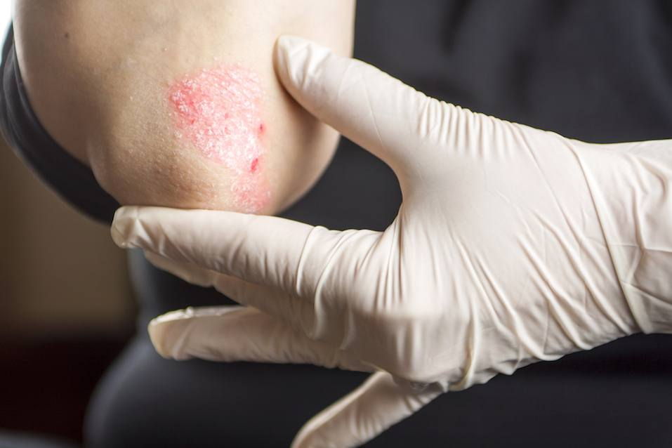 Rough skin on a patient's elbow
