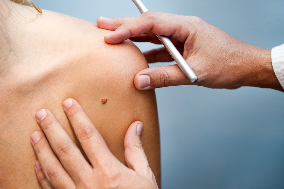 Questions Every Woman Needs To Ask The Dermatologist