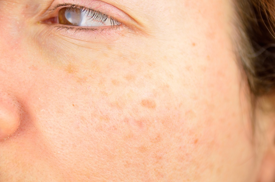 Woman cheek with liver spot