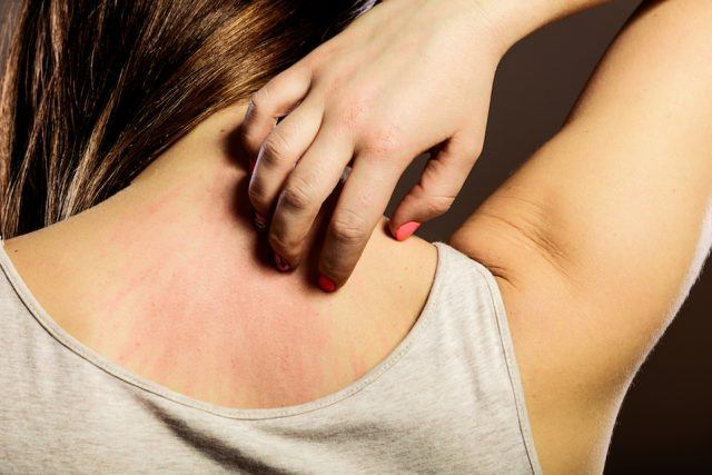 Woman scratching her itchy back