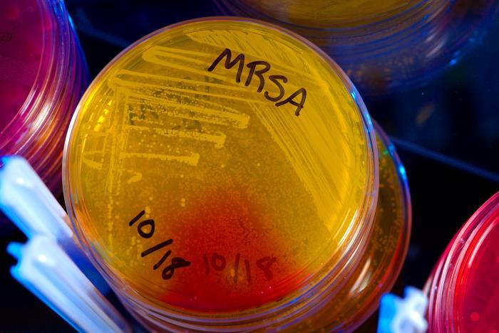 Staphylococcus aureus, or MRSA, in a petri dish.
