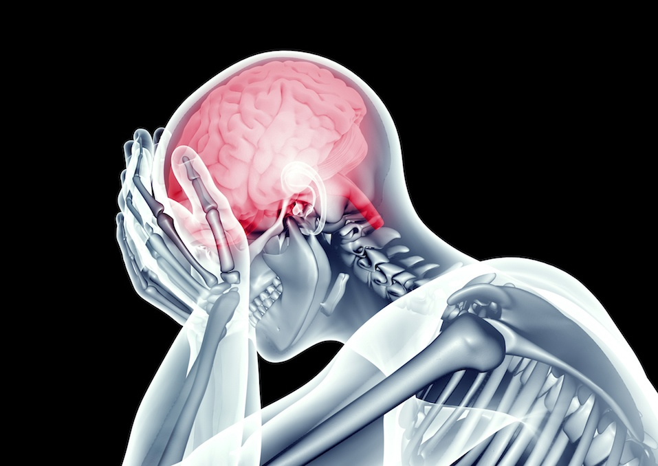 human head with headache pain