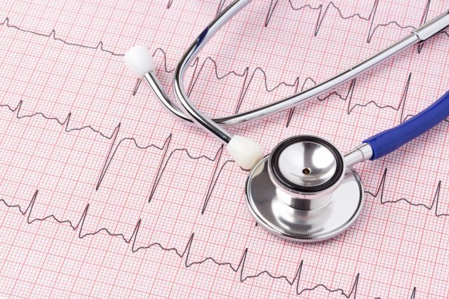 Stethoscope sitting on an red ECG printout