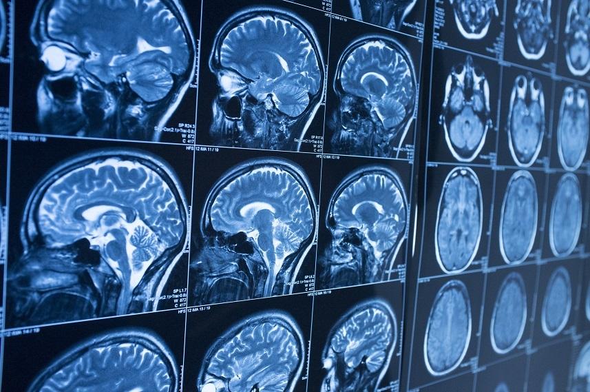 MRI brain scan