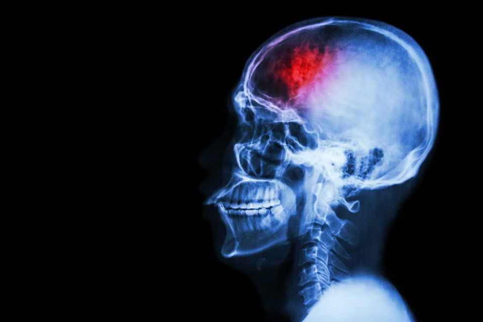 Film x-ray showing a skull with a stroke