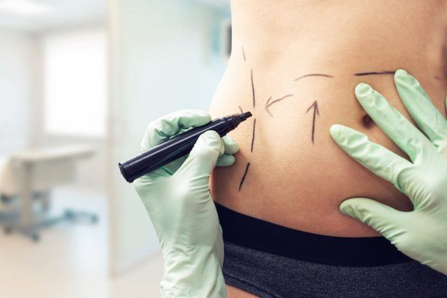 Plastic surgeon making marks on a body.
