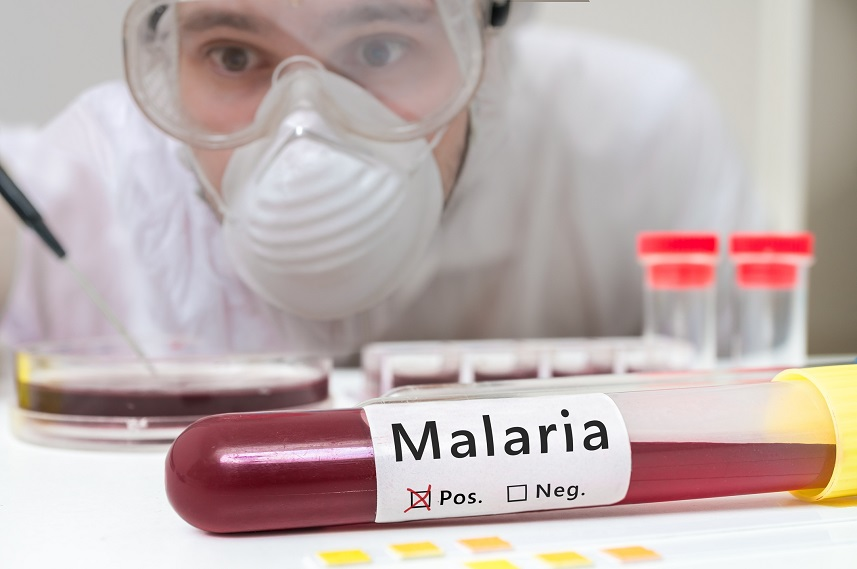 Researcher is analyzing test tube with Malaria