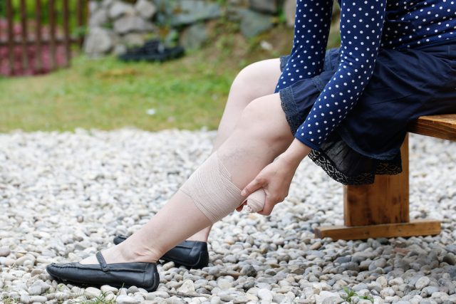 Woman with varicose veins applying compression bandage