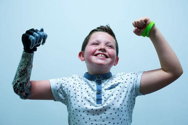 9 year old Josh Cathcart from Dalgety Bay shows his excitement during the final fitting for his new bionic hand at Touch Bionics' headquarters