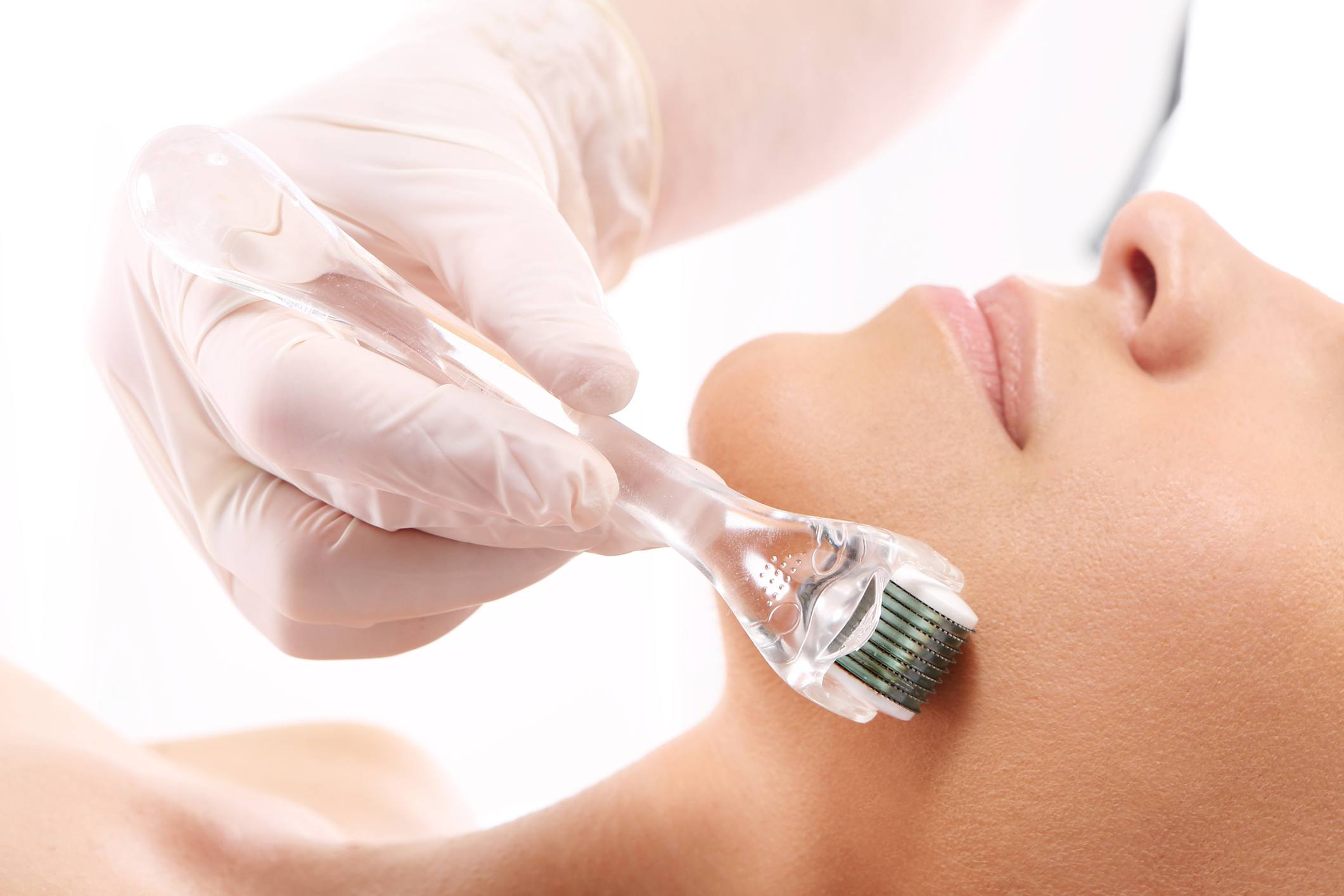 Micro-needling or Derma-rolling
