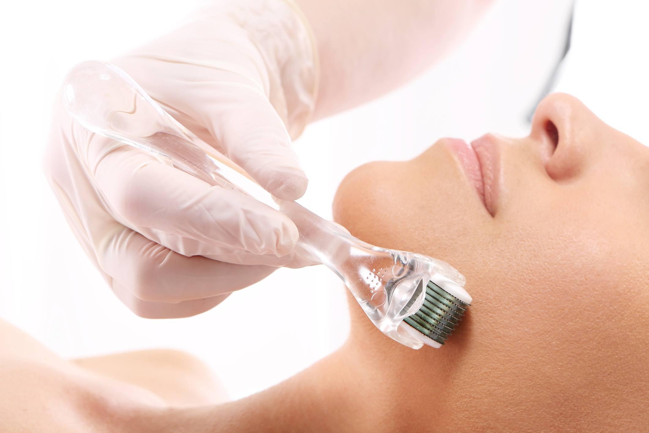 Micro-needling or Derma-rolling