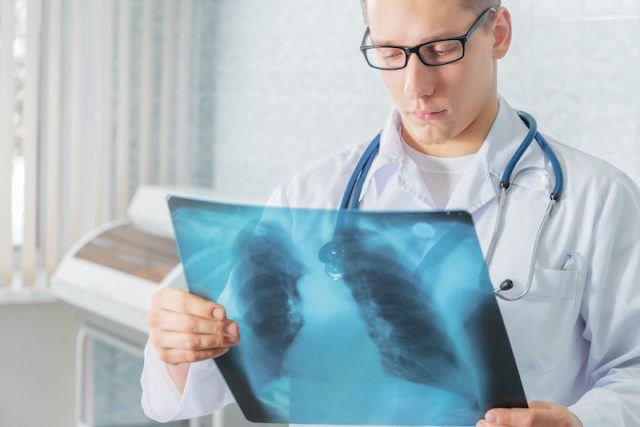 Doctor looking at an x-ray