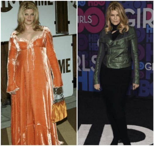 Kirstie Alley's weight loss transformation.
