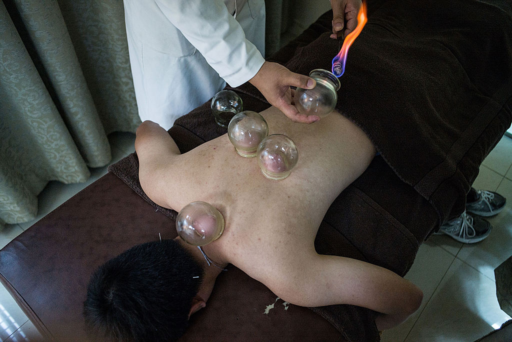 Undergoing Traditional Cupping Treatment In Hong Kong