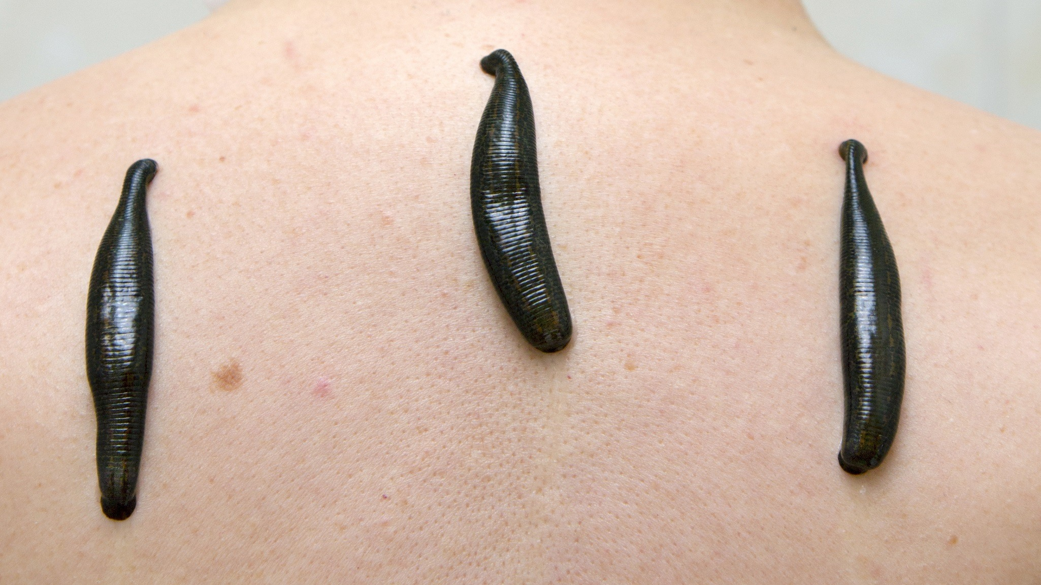 Leech therapy
