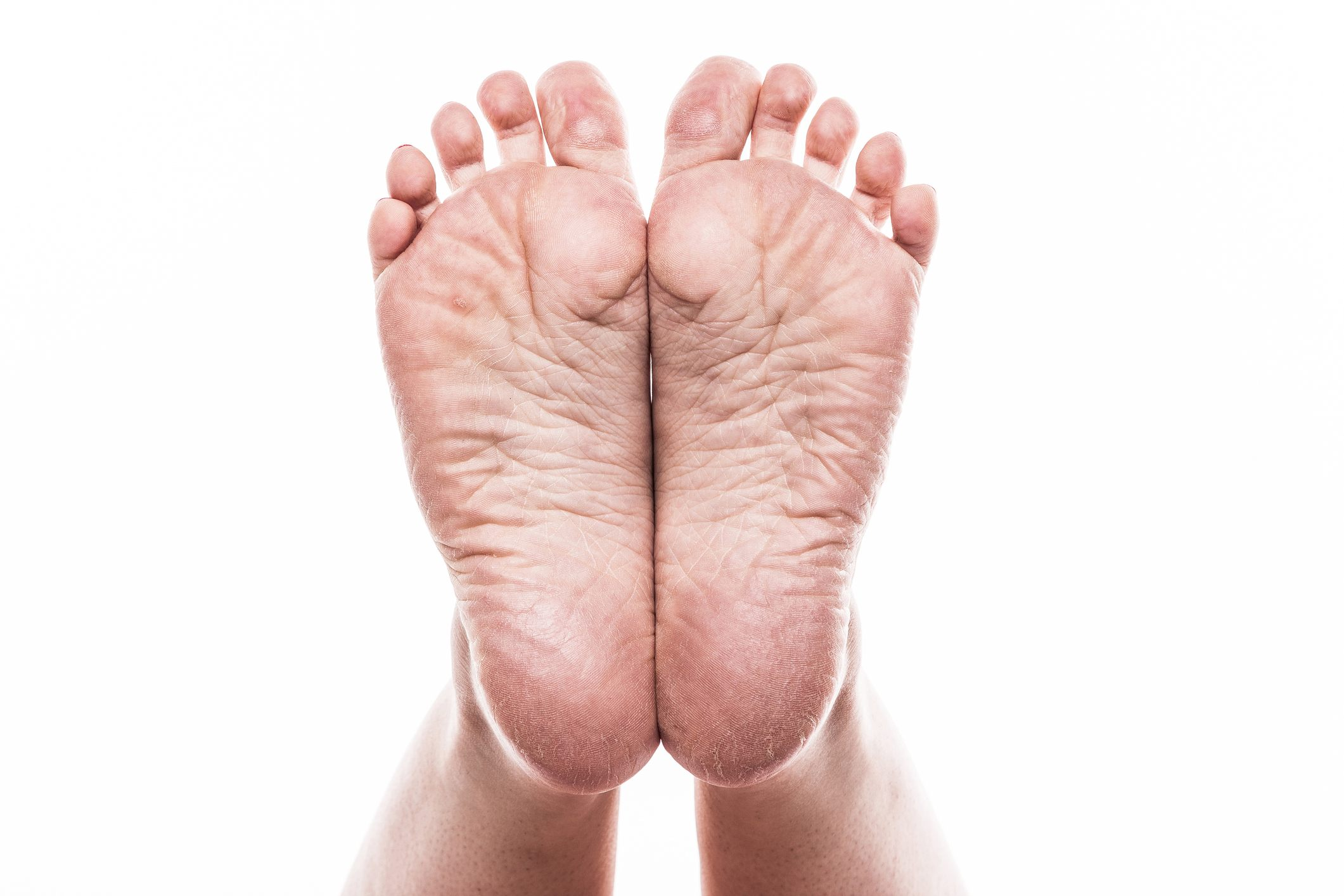foot with pedicure and poor over-dry skin on the heels