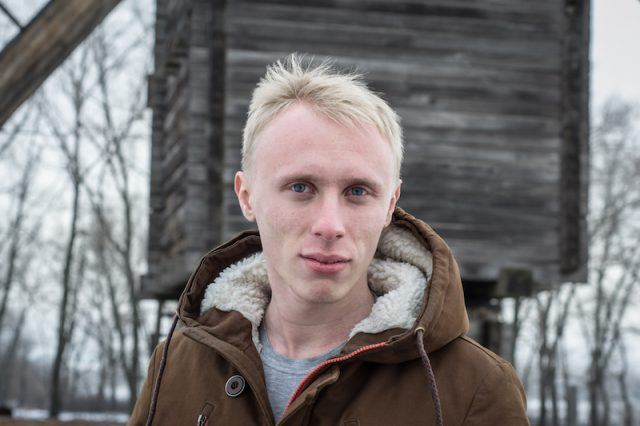 A man with Albinism posing while wearing a jacket.
