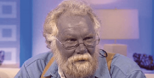 A man with blue/gray skin sits during a televised interview.